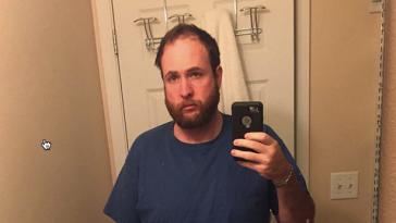 Άνδρας σταμάτησε να πίνει και δείχνει πώς άλλαξε μέσα σε 3 χρόνια